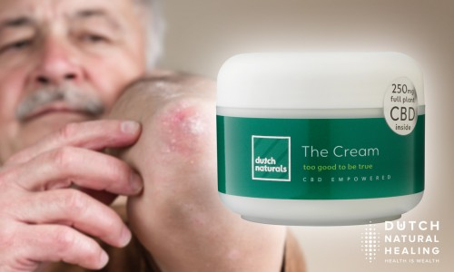 CBD oil and psoriasis: how hemp might help this auto-immune disease